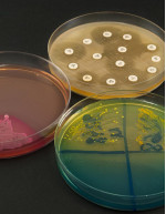 Microbiomes Market by Application and Geography - Forecast and Analysis 2021-2025